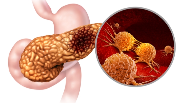 Mechanisms Of Metastasis In A Subtype Of Pancreatic Cancer That Is Especially Aggressive
