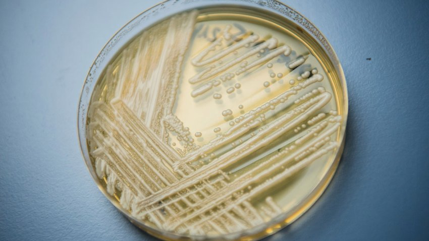 """Health Officials Say """"Superbug"""" Fungus Spread In Two Cities"""