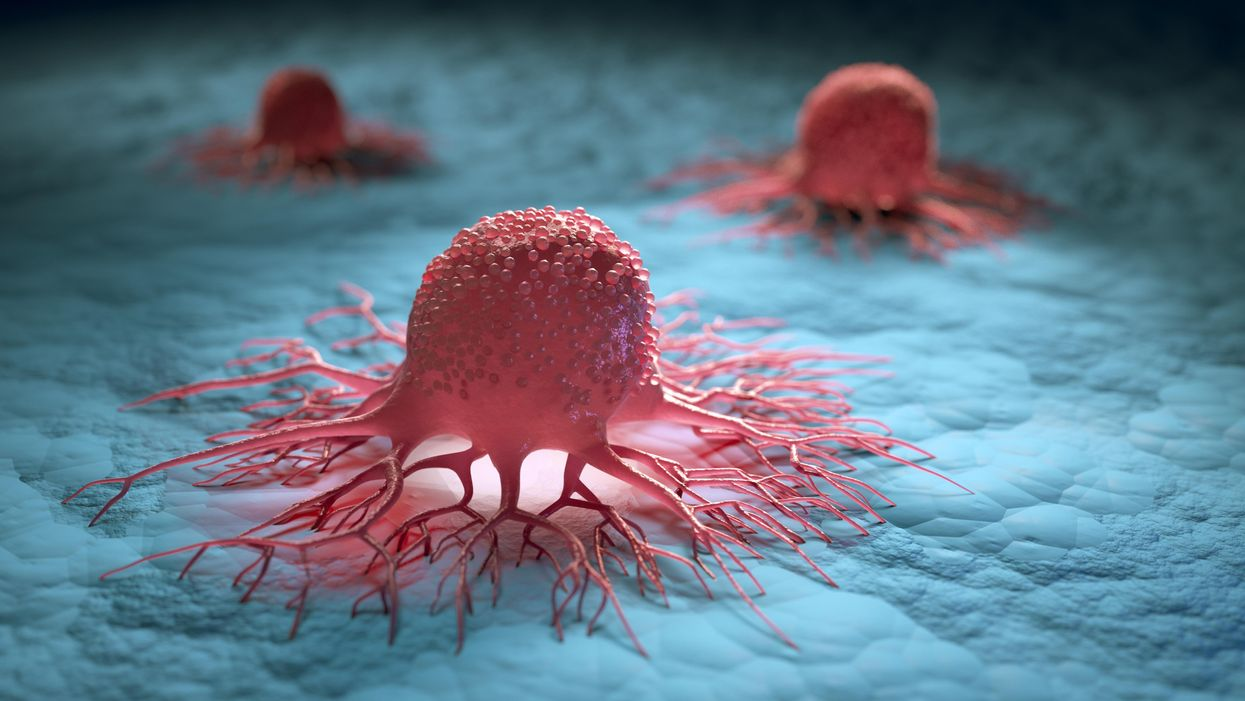 Tumor Cells Seem To Be Prevented From Moving Through Blood Arteries By A Glycoprotein